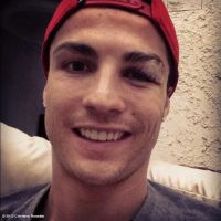 Cristiano Ronaldo amoché : sa photo Facebook pour rassurer ses fans