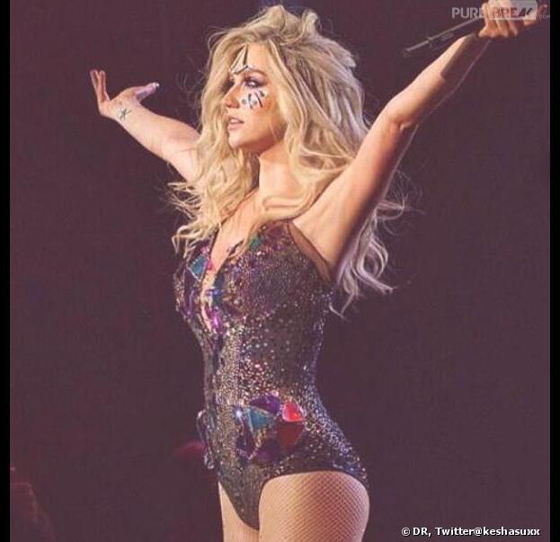 Kesha : elle serait née avec... une queue.