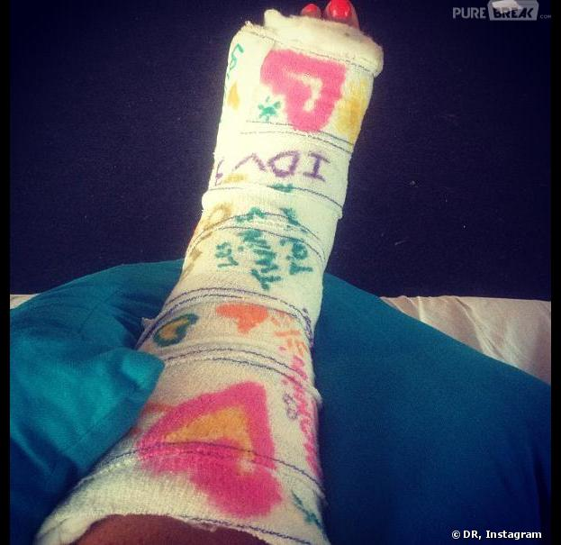 L'île des vérités 3 : Aurélie Van Daelen s'est cassé le pied sur le tournage à Tahiti.