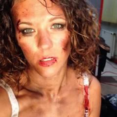 """Lorie """"femme battue"""" engagée sur Instagram pour un court-métrage"""