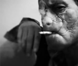 Hannibal saison 3 : Mason Verger change de visage