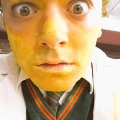 Kev Adams se Simpsonise : l'acteur rit jaune sur le tournage des Profs 2