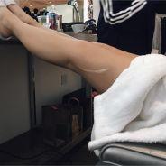 """Kylie Jenner dévoile son énorme cicatrice """"causée"""" par Kendall"""