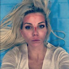Jessica Thivenin (Les Marseillais) : le visage en sang, elle s'affiche sur Instagram