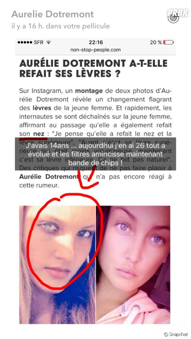 Aurélie Dotremont assume la chirurgie esthétique sur ses lèvres et pousse un coup de gueule sur Snapchat.