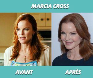 Desperate Housewives : Marcia Cross avant et après la série