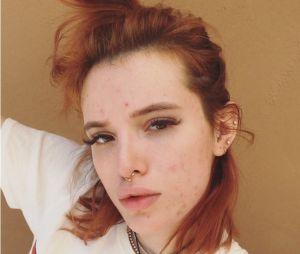 Bella Thorne sans maquillage : elle dévoile son visage plein d'acné