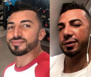 Smaïl (La Villa des Coeurs Brisés 2) métamorphosé par la chirurgie esthétique : l'ex d'Eddy a refait son nez !