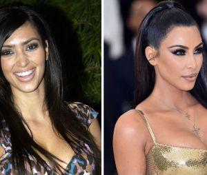 Kim Kardashian : son avant/après impressionnant