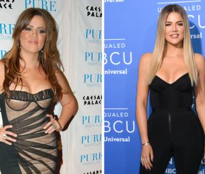 Khloe Kardashian : son avant/après impressionnant