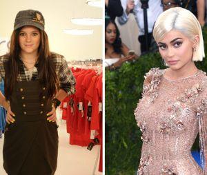 Kylie Jenner : son avant/après impressionnant