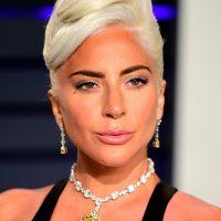 Lady Gaga : ses chiens enlevés, le dog sitter blessé par balles, la star prête à payer la rançon