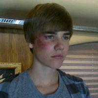 Justin Bieber avec un oeil au beurre noir ... pour son rôle dans la série Les Experts