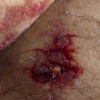 Ice Show : Merwan Rim blessé pendant un entraînement