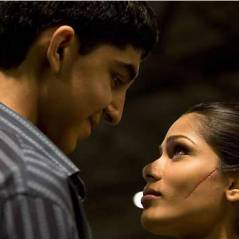 Dev Patel et Freida Pinto (Slumdog Millionaire) : que sont-ils devenus ?