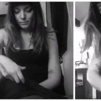 Bouleversant : le quotidien Manon, paralysée d'un bras depuis un grave accident de moto