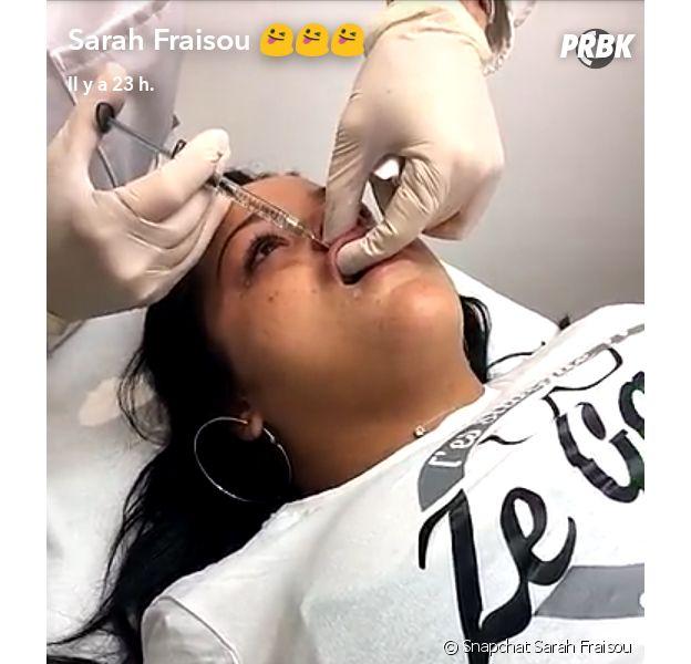 Sarah Fraisou se fait des injections dans les lèvres en direct sur Snapchat