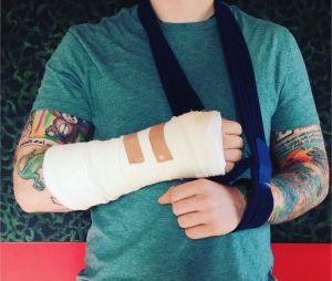 Ed Sheeran se dévoile le bras dans le plâtre sur Instagram