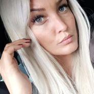 """Aurélie Dotremont regrette ses injections aux lèvres : """"j'ai fait une grosse bêtise"""""""