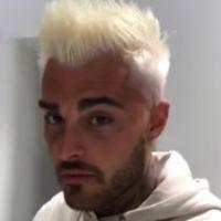 Thibault Garcia devient blond et se fait poser de nouvelles dents : son changement de look radical