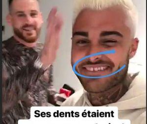 Thibault Garcia (Les Marseillais Australia) devient blond et change ses dents : le chéri de Jessica Thivenin est méconnaissable !