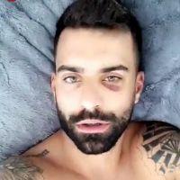 Vincent Queijo (Les Anges 10) agressé par plusieurs personnes : il dévoile sa blessure sur Snap 🤕