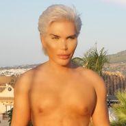 """Rodrigo Alves : le """"Ken humain"""" se fait faire un lifting aux fesses"""