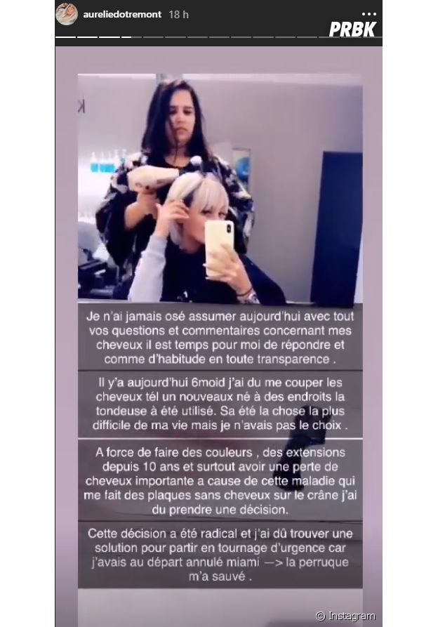 Aurélie Dotremont se dévoile sans perruque et se confie sur sa maladie