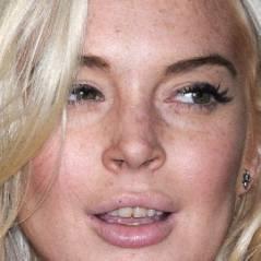 Lindsay Lohan : des nouvelles dents pour un nouveau départ (PHOTO)