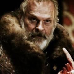 Game of Thrones : un acteur se fait arracher l'oreille par un dingue