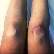 Alizée (Danse avec les stars) blessée : la photo choc de la tournée