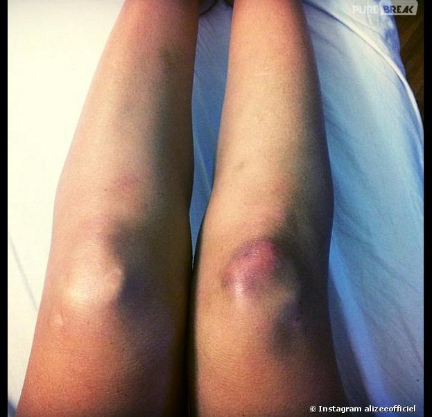 Danse avec les stars : Alizée encore blessée pendant la tournée
