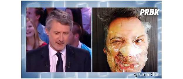 Antoine de Caunes : visage recouvert de scotch dans Le Grand Journal, le 21 mars 2014 sur Canal Plus