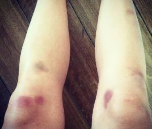 Nathalie Péchalat blessée pendant les répétitions de Danse avec les stars 5