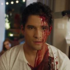 Teen Wolf : Scott et Lydia morts... pour la promo sanglante de Scream