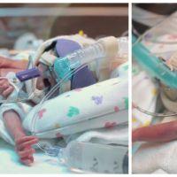 Prématuré de 4 mois, ce bébé fragile et en pleine détresse va vous serrer le coeur